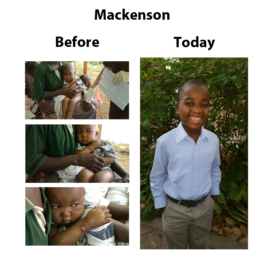 Mackenson before and now June 2015