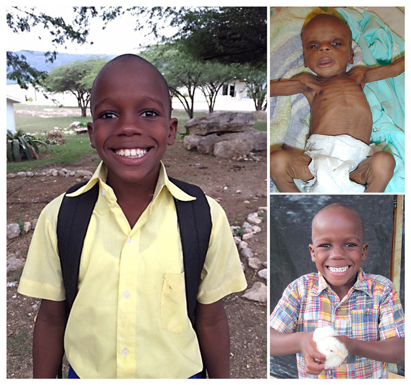 Love A Child Orphanage Haiti - Update on Moses