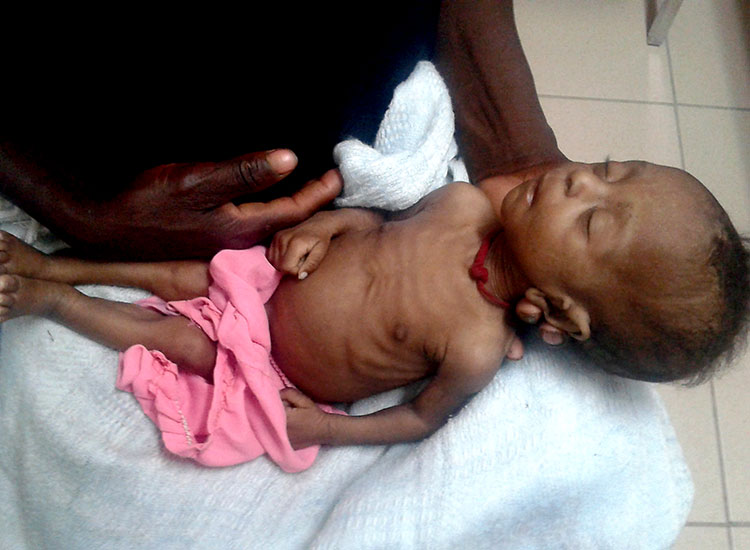 Child starving to death, needs Feeding Program.