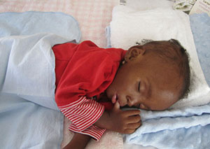 A young malnutrition patient at our medical facility in Haiti