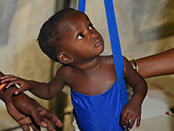 Another young patient at our Malnutrition Center in Haiti