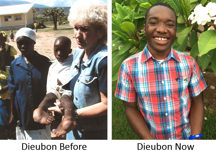 Dieubon before and after surgeries