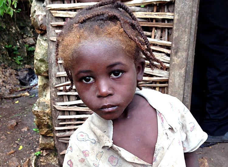 Children with malnutrition.