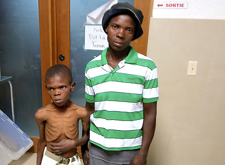 Child died from severe malnutrition.