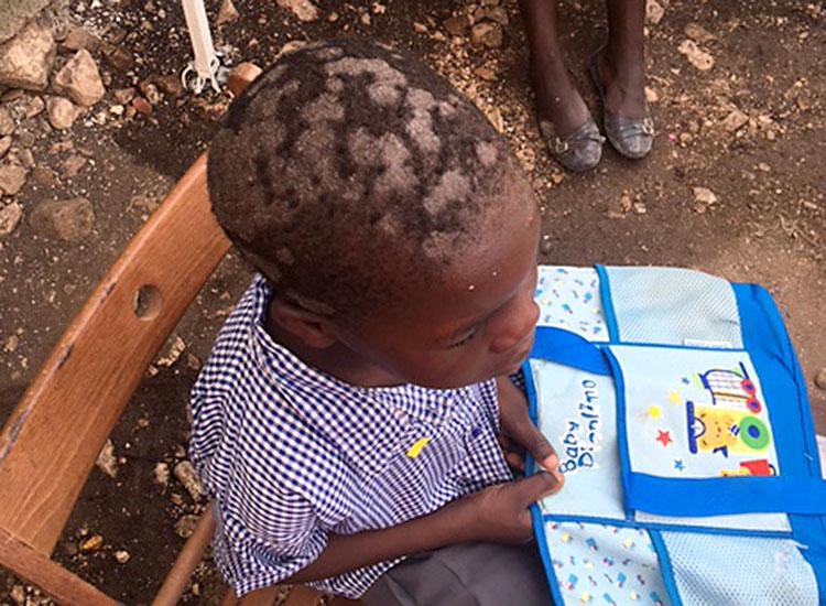 Child suffering skin infections (impetigo).