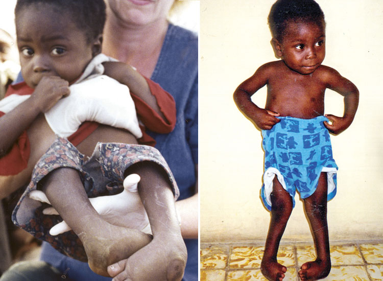 Dieuferly was born with bilateral club foot and was severely malnourished.