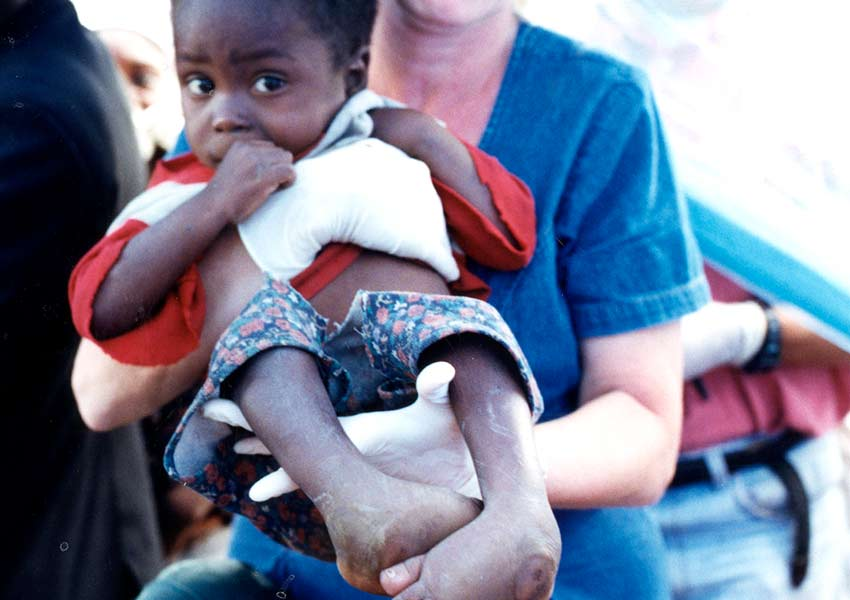 He was born with bilateral clubfoot and was severely malnourished.